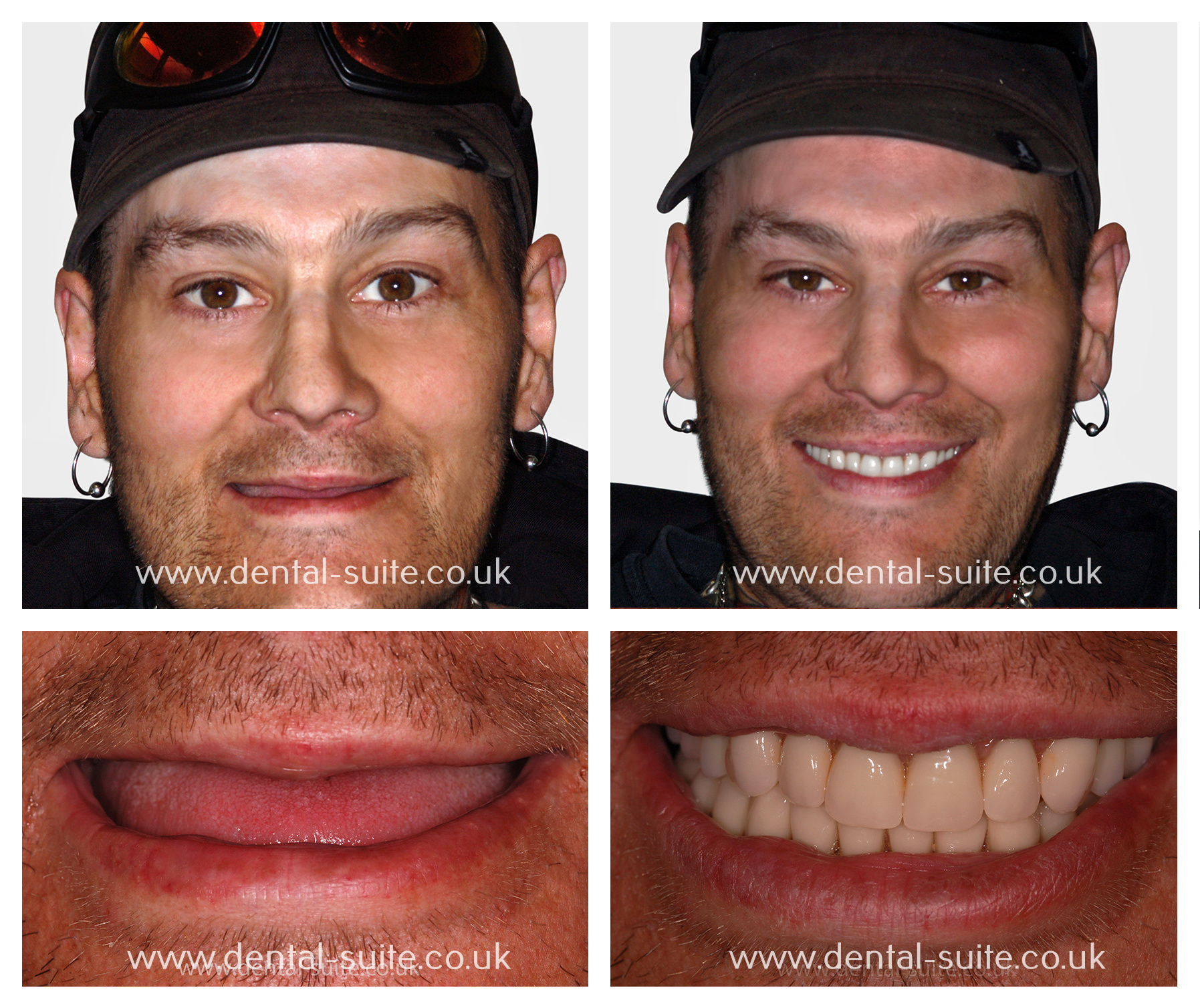 Nottingham Teeth in a Day Treatment - The Dental Suite