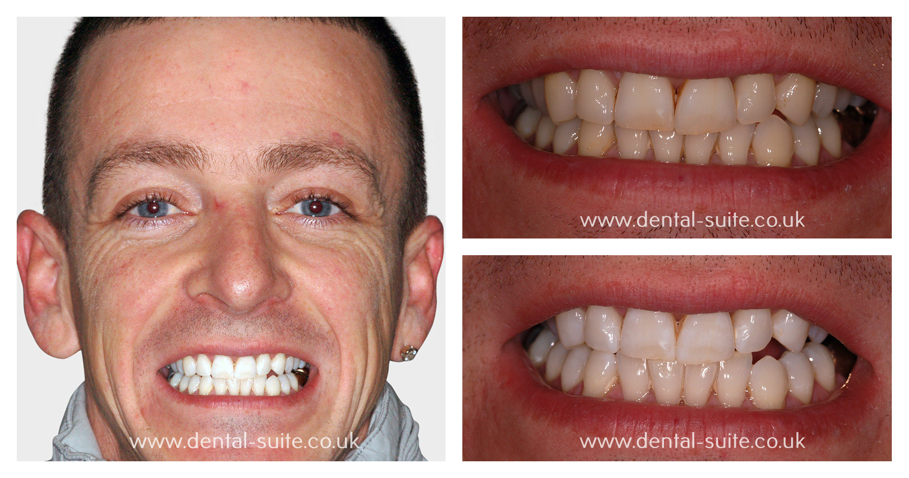 Nottingham Teeth Whitening Treatments Professional Zoom Tooth