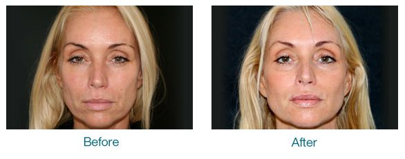 Nottingham Radiesse Dermal Fillers for More Youthful Appearance
